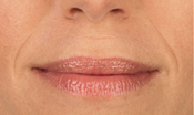 Closeup of smile lines before Juvederm treatment