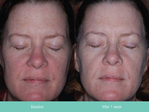 Before and after 1 week of Rosacea treatment with Rosaclear