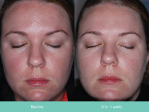 Before and after 4 weeks of Rosacea treatment with Rosaclear