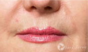 Closeup of smile lines after Juvederm treatment