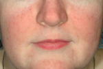 After Rosacea Treament with IPL