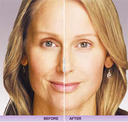 JUV�DERM� Gel Filler