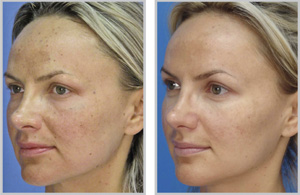 MicroLaserPeel before and after photos