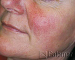Before Rosacea Treament with IPL