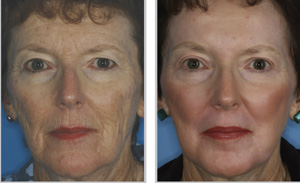 Skin Resurfacing - Before and After