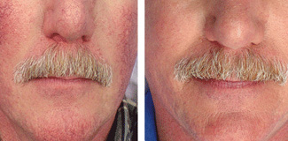 Before and after: Visible blood vessels and broken capillaries virtually disappear with ClearScan laser treatment.