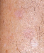 age spot removal after pictures