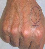 hand rejuvenation after
