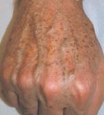 hand rejuvenation before