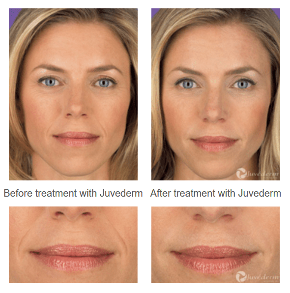 juvederm before after photos