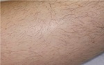 leg hair removal before picture