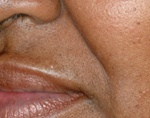 lip hair removal after picture