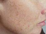 photo facial before cheeks