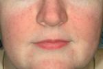 photo facial treatment after