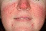 photo facial treatment before
