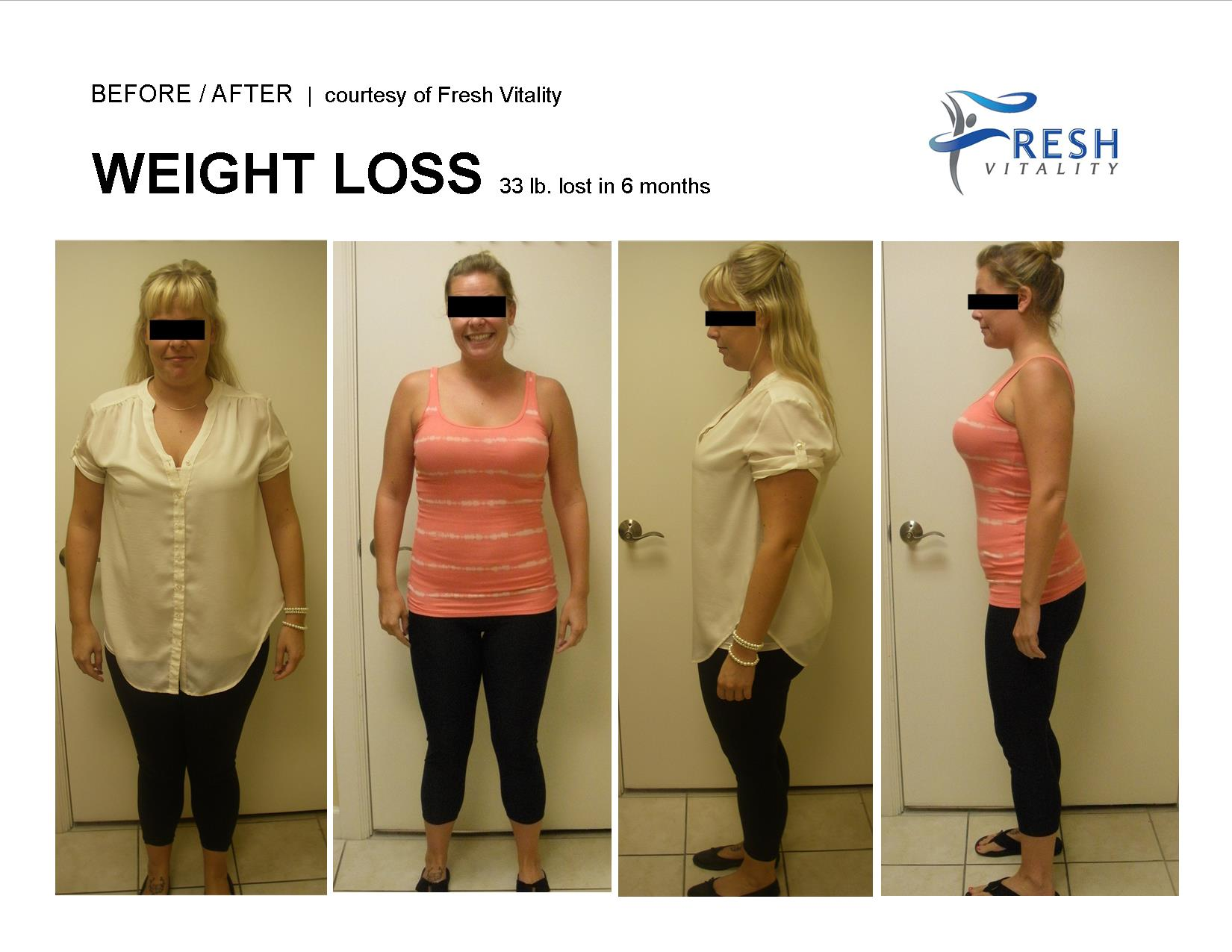 Medical Weight Loss St Petersburg Before After 33 pounds