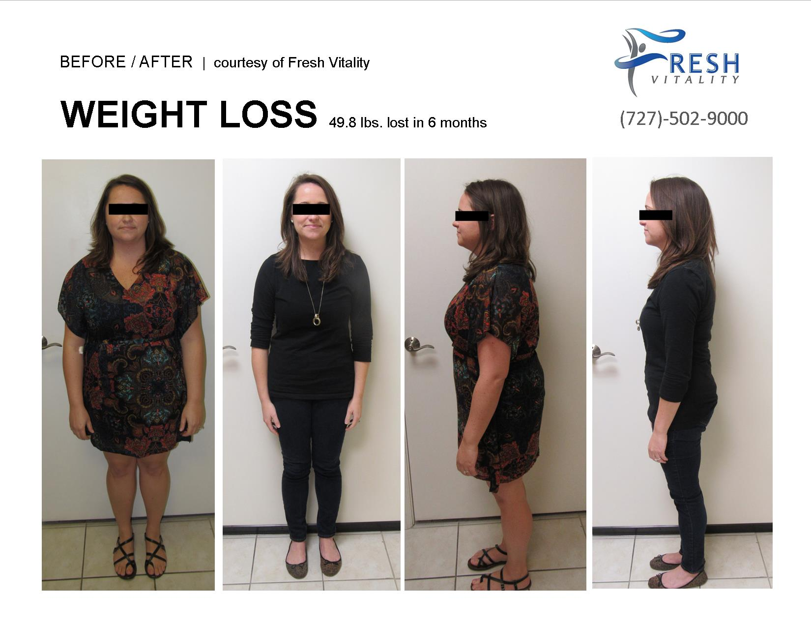 Medical Weight Loss St Petersburg Before After 49.8 pounds
