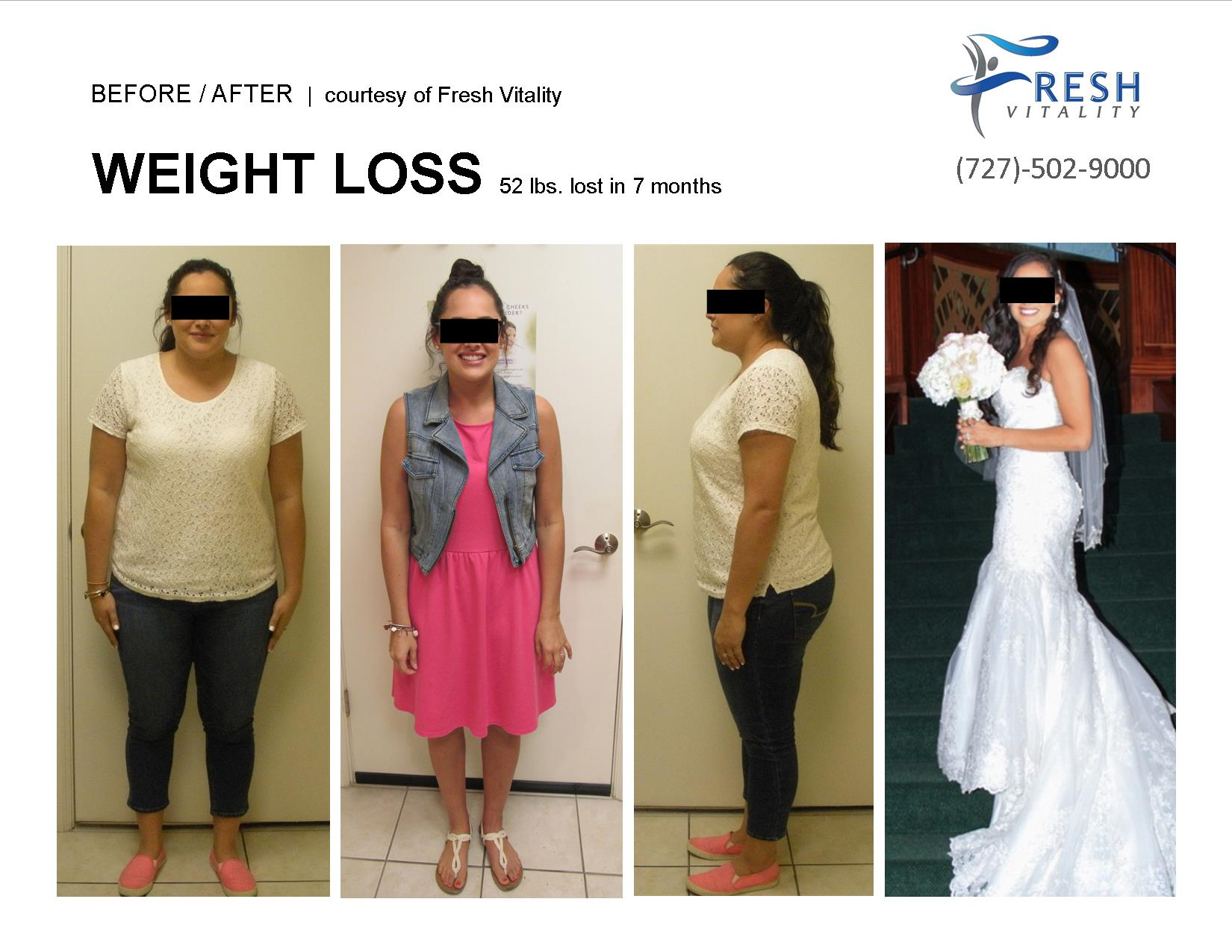 Medical Weight Loss St Petersburg Before After 52 pounds