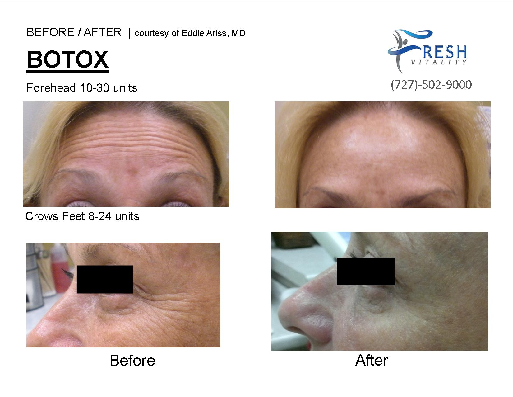 botox picture before after saint petersburg fl