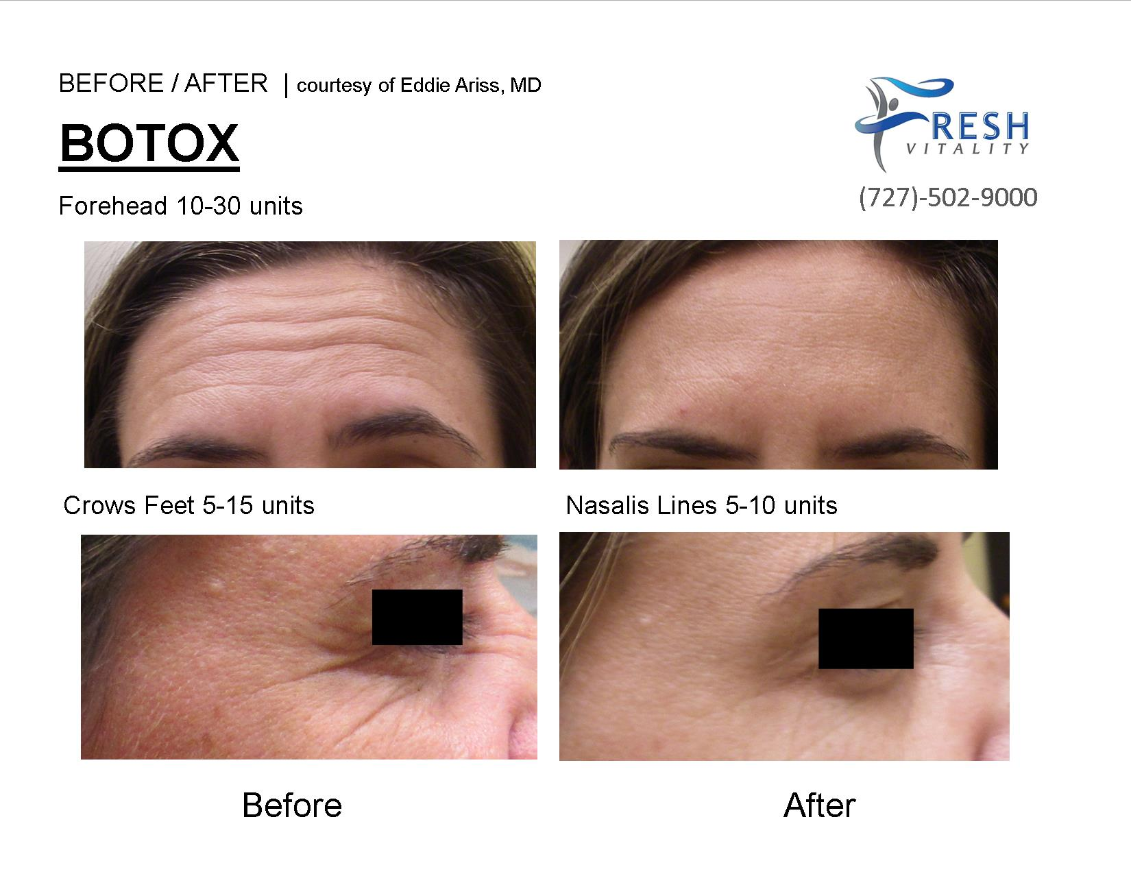 botox picture before after st pete fl