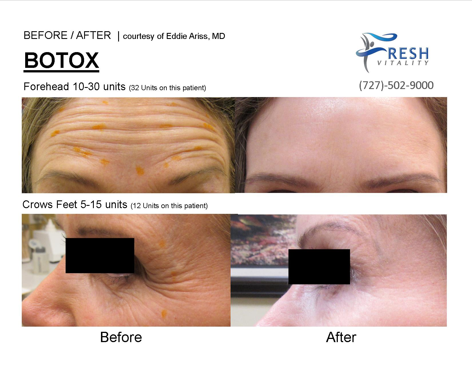 botox picture before after st petersburg fl