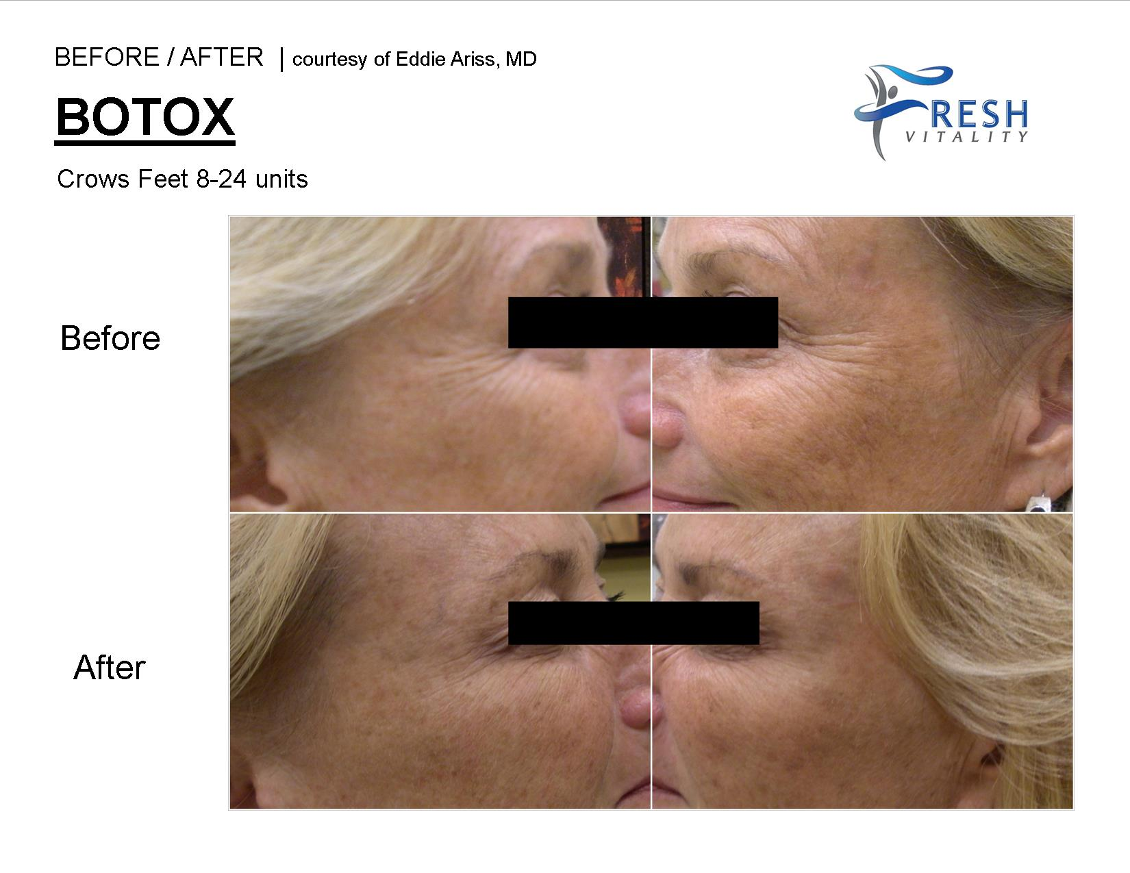 botox picture before after st petersburg
