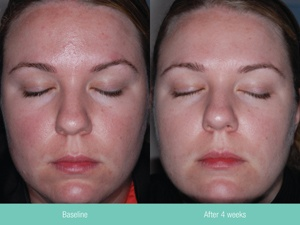 rosacea treatment st pete fl