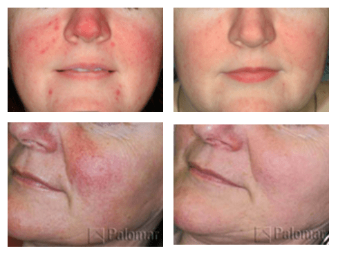rosacea treatment st petersburg fl