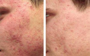 Acne and Acne Scar Treatment