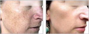 Freckles Age Spots Sun Damage Treatment