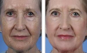 Skin Resurfacing Treatment