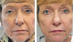 Wrinkle Reduction Treatment